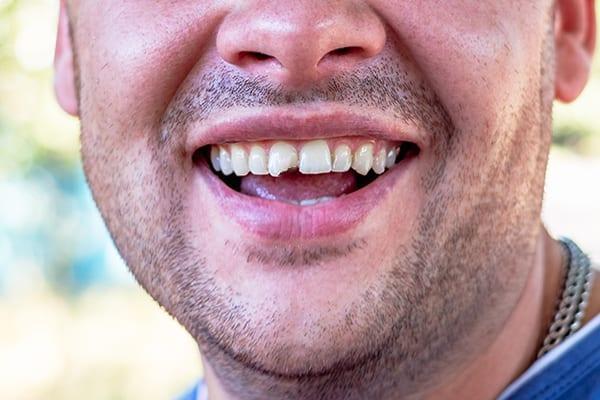 Cracked Chipped Teeth - Croydon VIC