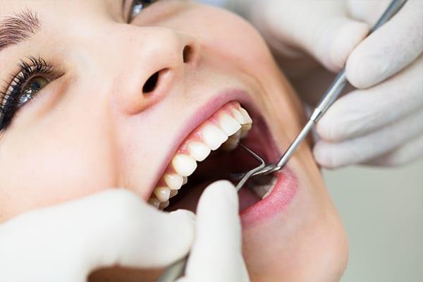 Dental tooth filling in Croydon