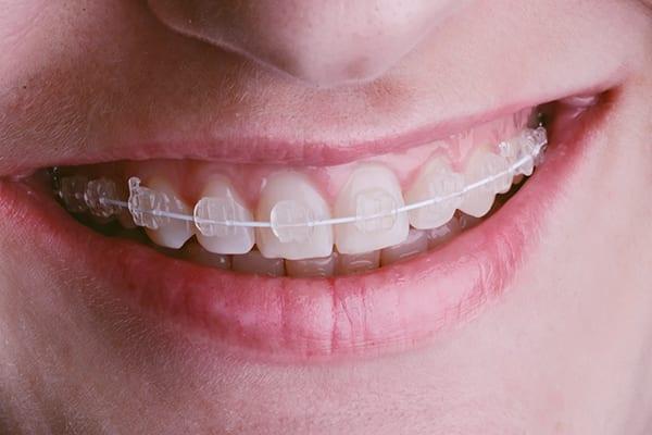 Orthodontics -Croydon, Vic