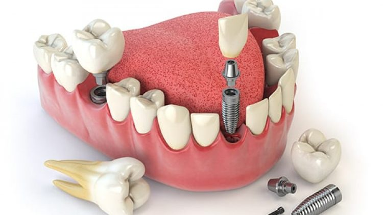 How Much Does a Dental Implant Cost?