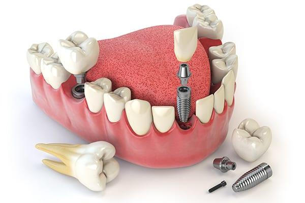 Restorative-Dentistry-Croydon,-Vic | Dental implants Croydon