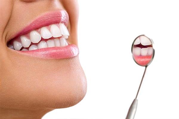 Teeth Whitening in Croydon