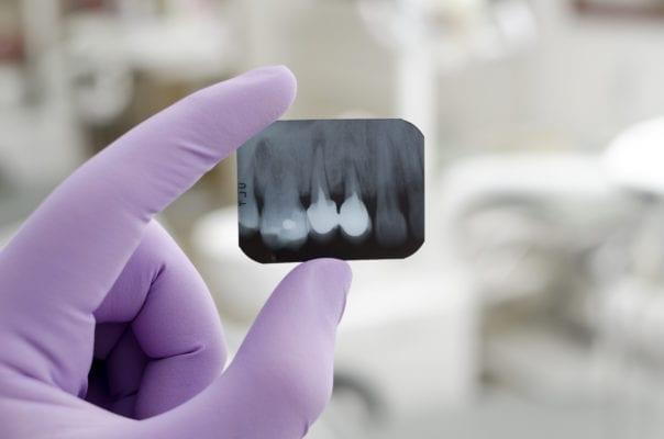 Dental X Rays