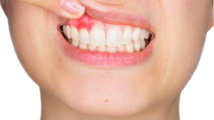 Gingivitis: Causes, Symptoms, Implications, and Treatment