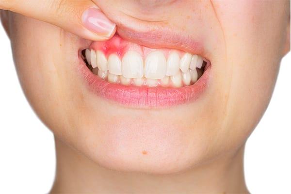 gum-disease treatment or gingivitis