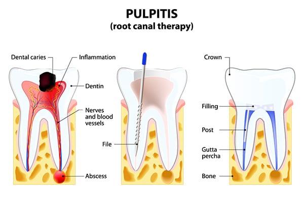 Dental Root Canal Treatment Croydon